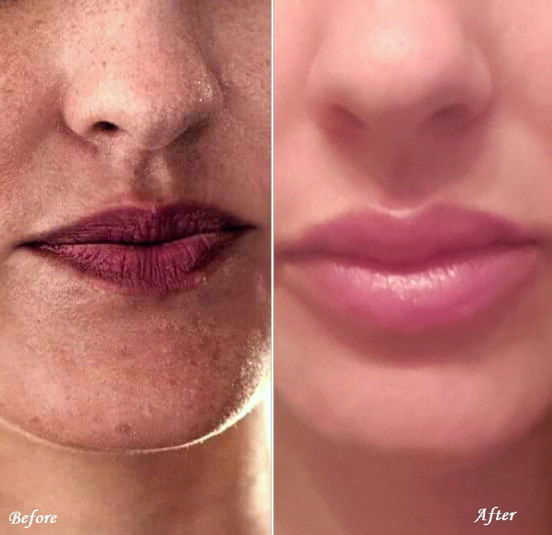 e-before-and-after-lips