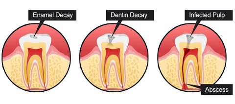 Tooth-Decay-Process