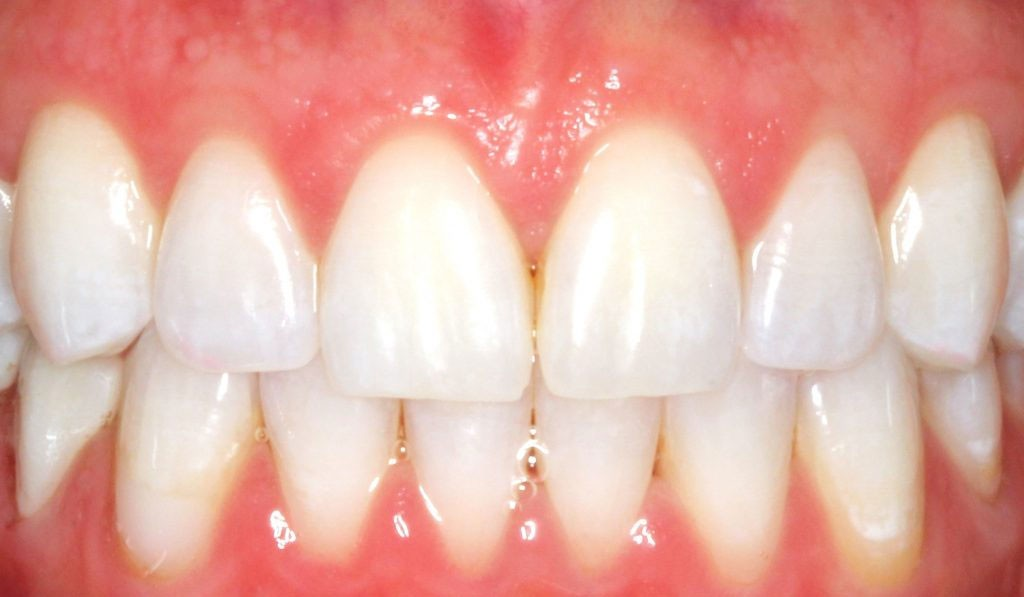 D. DM teeth whitening after