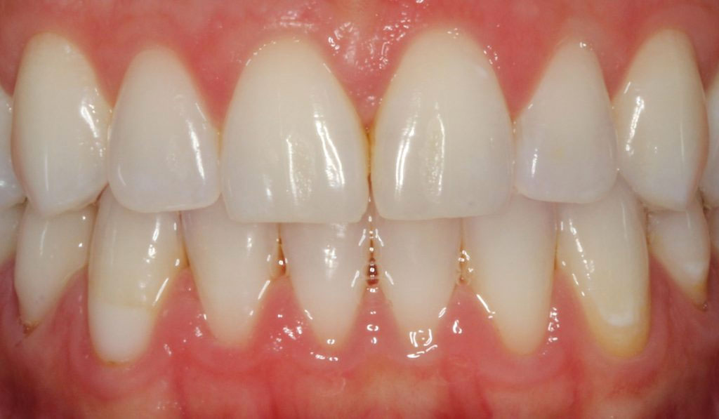 C. DM teeth Whitening Before