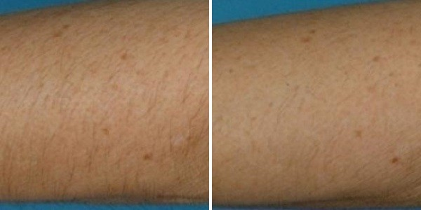 cool-glide-arms-before-after - MG Dentistry