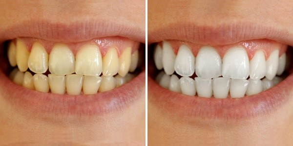 Image result for white teeth before after