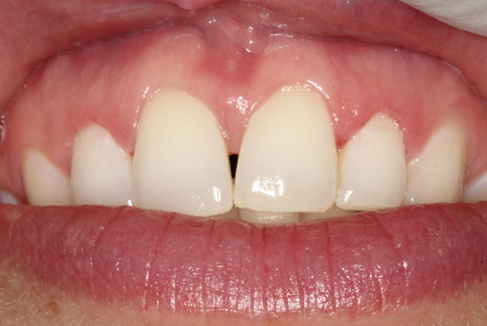B. MS laser grum gingioplasty after