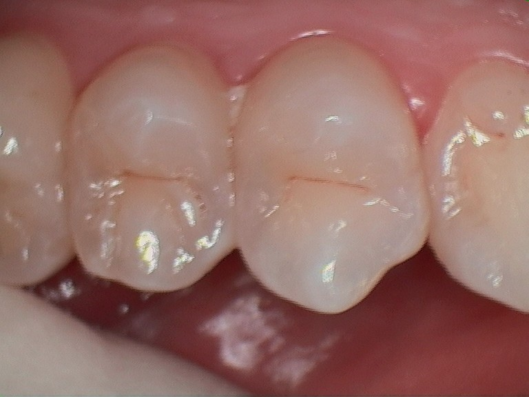 A. lower amalgam before