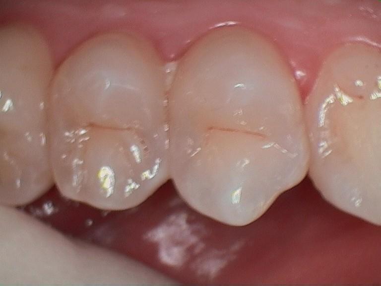 A. lower amalgam before