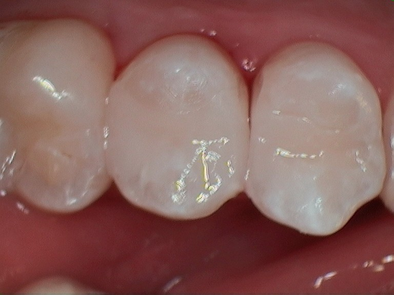B. lower composite after